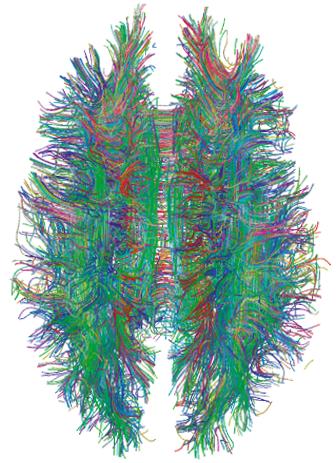 Representación de lo que parece ser un cerebro humano. La imagen tiene una forma almendrada pero dividida por la mitad, y todo está hecho a base de líneas de distintos colores que van de un lado para otro.